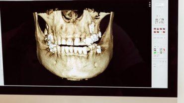 Funding Options for Dental Practices | LendGenius